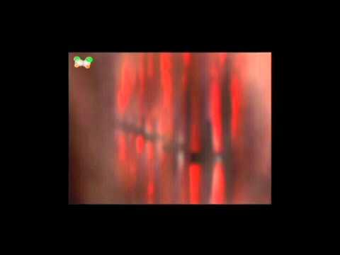 Poly Vinyl Chloride (PVC)