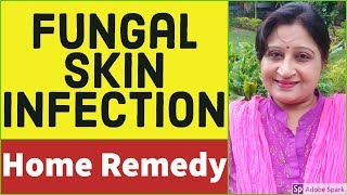 Skin Fungal Infection Treatment   Skin Infection   How to cure Skin Fungus Naturally