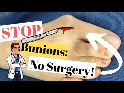 Top 7 Bunion Home Treatments: Bunion Correctors, Splints & Gel Pads!