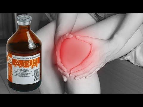 АСД-2Ф в лечении суставных болей.
