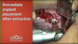 Immediate implant placement after extraction