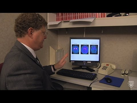 Mayo Clinic Minute: What Is Lewy Body Dementia?