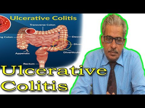 Ulcerative Colitis in Hindi - Discussion and Treatment in