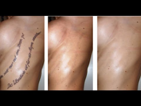 How to remove tattoos without laser treatment youtube for Absolute laser tattoo removal