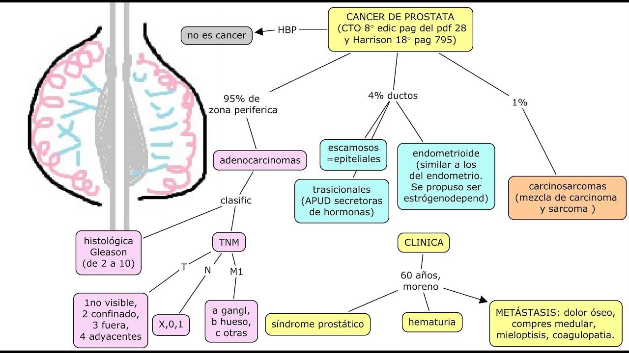 cancer de prostata harrison)