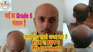 Which Technique Should be use in Baldness Grade 6 - FUE, FUT or Both