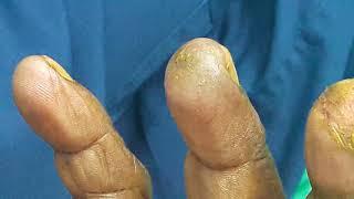 Kunkum Dermatitis + Tinea Manuum