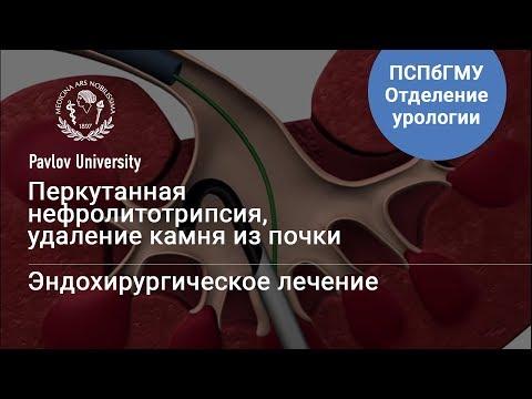 Удаление камней из почки (Гаджиев Н.К.) | Клиника лечения мочекаменной болезни и эндоурологии