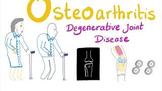 Osteoarthritis (OA) Part 2: Definition, Etiology& Epidemiology