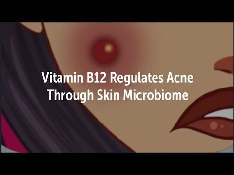 Vitamin B12 Regulates Acne with Skin Bacteria | Microbiome, Probiotic