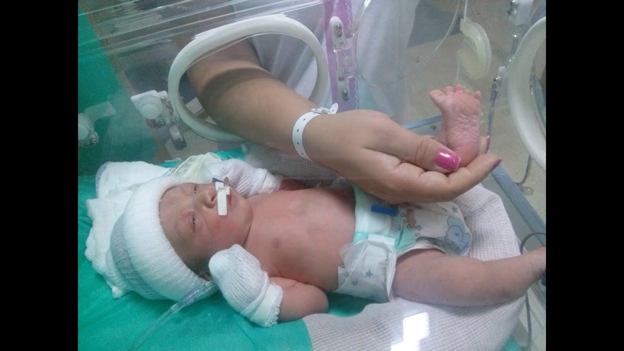 Sintomas de parto prematuro 32 semanas