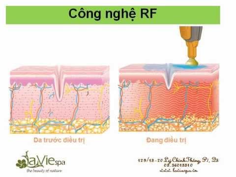 La Vie spa - Trị liệu công nghệ cao bằng sóng RF (Radio Frequency) tại La Vie spa
