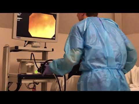Колоноскопия, техника интубации (13).