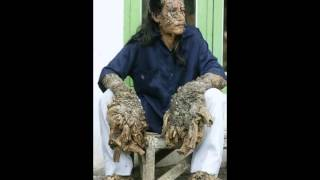 Opie and Anthony - Treeman (04/15/2008 and 12/22/2008)