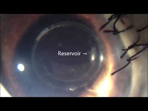 .國外發明新植入物,可助青光眼患者檢測眼內壓
