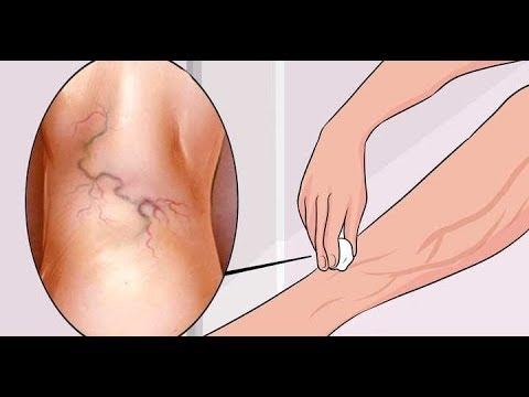 preparate din venele varicoase ale extremităților inferioare chirurgul frumos varicose