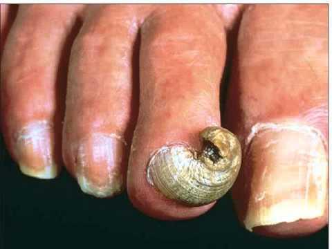 Los barnices y el gel para el tratamiento de las uñas