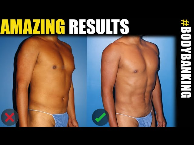 Male Plastic Surgery Expert Reveals Latest BodyBanking Results