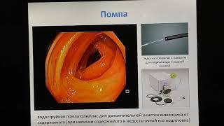 07 Кашин СВ Методики техники и приемы проведения колоноскопии у пациентов с анатомическими особеннос