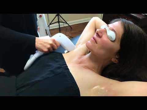 DIOLAZE Laser Hair Removal performed by Robin Brock