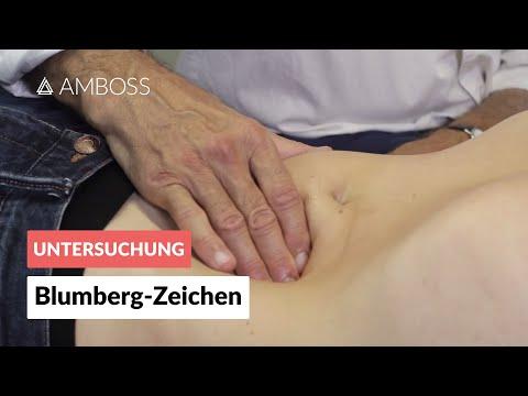Blumberg-Zeichen - Klinisches