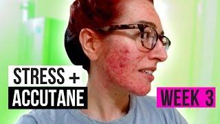 I HATE BEING STRESSED! | WEEK THREE OF ACCUTANE | Jess Bunty Acne Vlog 3