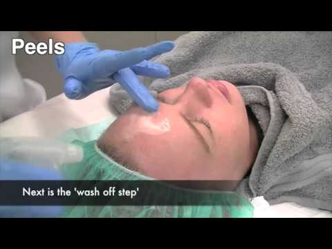 how-to-treat-melasma-pigmentation