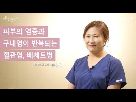 피부의 염증과 구내염이 반복되는 혈관염, 베체트병