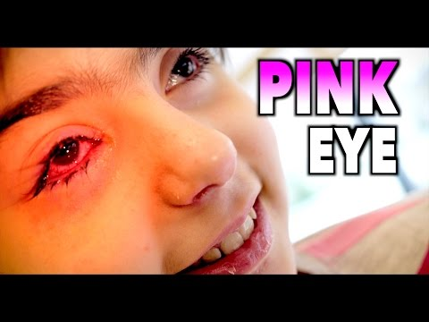 WORST PINK EYE EVER?  Dr Paul