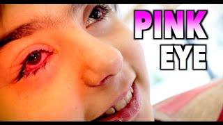 WORST PINK EYE EVER? | Dr. Paul