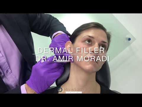 Facial Rejuvenation with Filler - Eyes, Lips, Cheeks & Jaw by Dr. Amir Moradi San Diego California