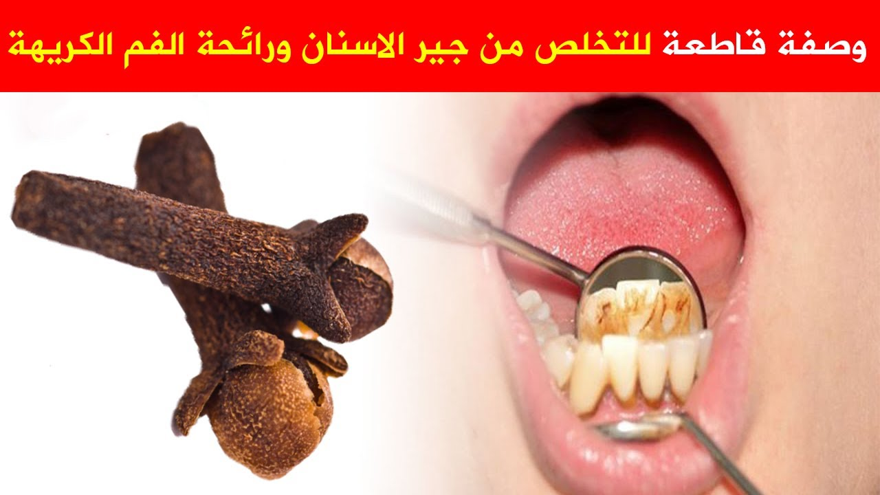 هذه افضل وصفه أكيدة للتخلص من جير الاسنان ورائحة الفم الكريهه كيفيه القضاء على رائحة الفم السيئة Youtube Ear Cuff Ear Earrings