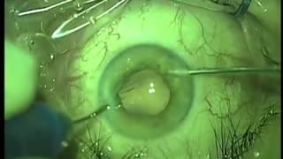 Операция по удалению катаракты глаза (факоэмульсификация)(Факоэмульсификация катаракты глаза с имплантацией ИОЛ. Подробнее об операции на сайте