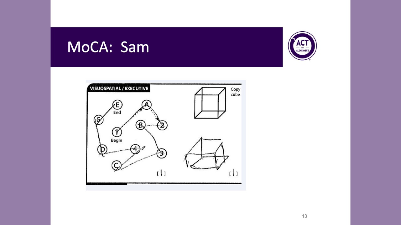 Montreal Cognitive Assessment MoCA Administration And Scoring