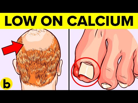 19 Signs You Are Suffering From Calcium Deficiency