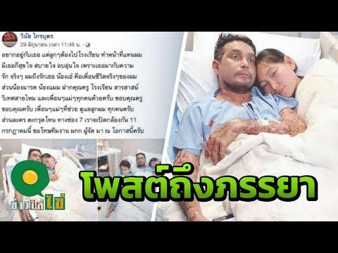 เมฆ วินัย โพสต์ซึ้งถึงภรรยา ในวันที่ล้มป่วยเป็นโรคตุ่มน้ำพอง - วันที่ 02 Jul 2019