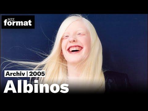 Albinos - Dokumentation von NZZ Format (2005) | Alte Tonmischung