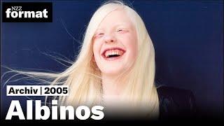 Albinos - Dokumentation von NZZ Format 2005 | Alte Tonmischung