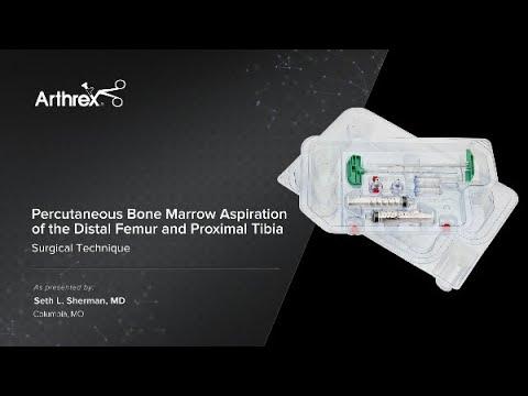 Percutaneous Bone Marrow Aspiration of the Distal Femur and Proximal Tibia
