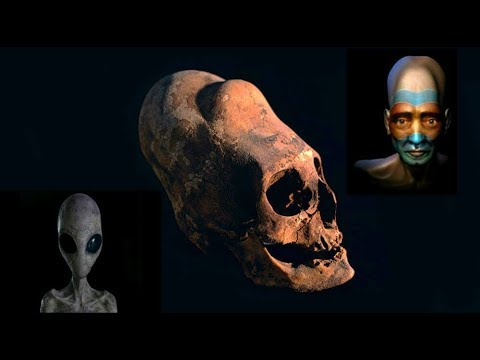 Shock verdict after DNA tests reveal where 'elongated heads came from'