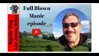 Bipolar Disorder Full Blown Manic Episode