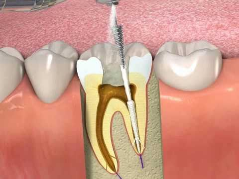 Propoint How To Obturate A Root Canal With Smartseal