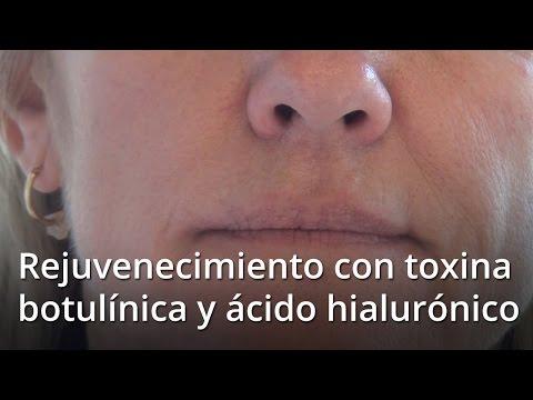 Rejuvenecimiento facial con toxina botulínica y ácido hialurónico (16061)