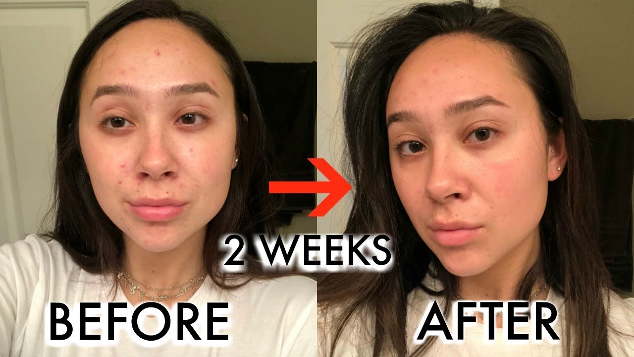 updated-skincare-routine-acne-is-finally-going-away