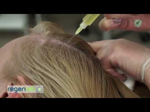 Алопеция - фото, виды, лечение алопеции у женщин и мужчин