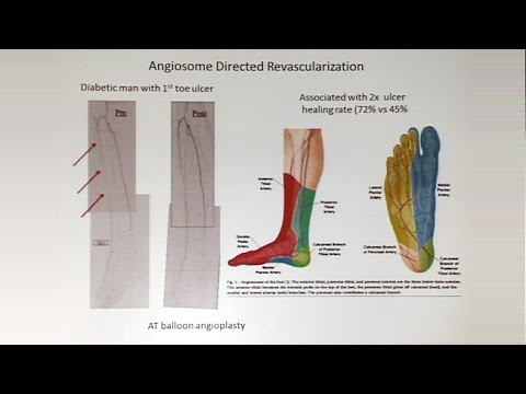 Staging The Neuroischemic Limb: Rutherford WIfI And Other Approaches