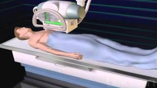 Компьютерная томография КТ и рентген