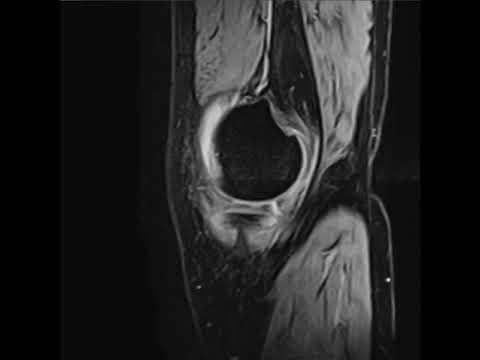 МРТ коленного сустава на томографе 1,5 Тесла.