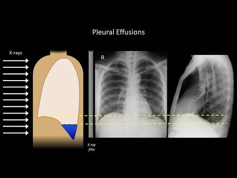 how-to-interpret-a-chest-x-ray-(lesson-6---diaphragm-and-pleura)