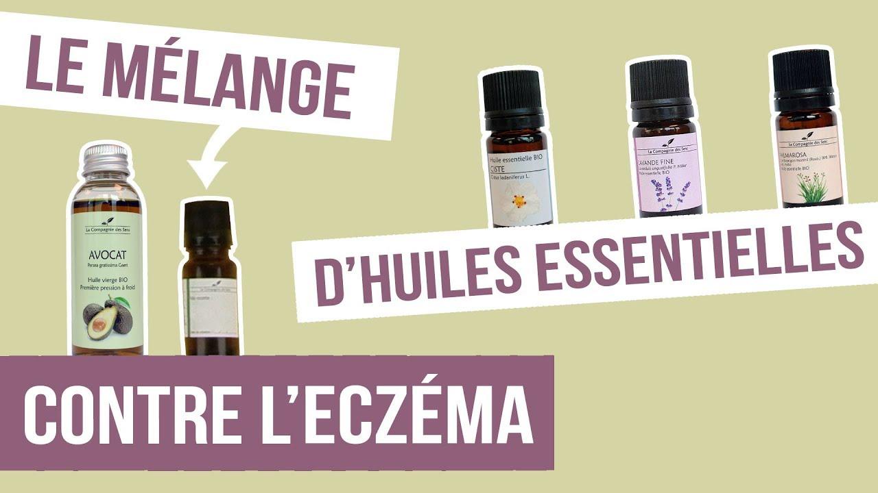 [DIY] ECZÉMA SEC - Fabriquer son remède naturel aux huiles ...
